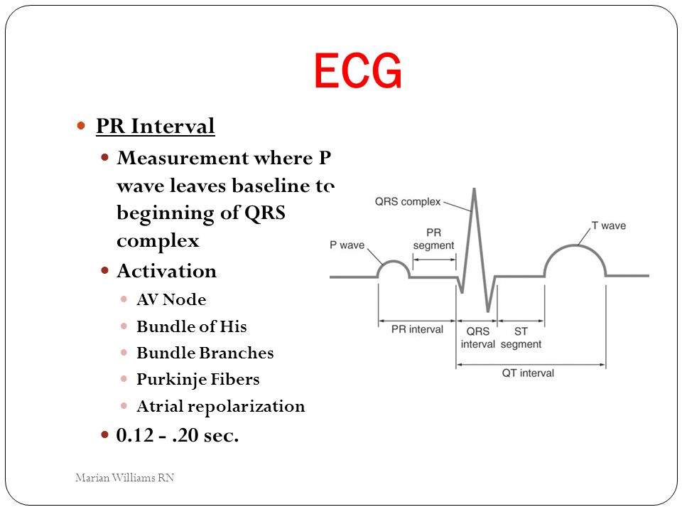 ECG PR Interval. Measurement where P wave leaves baseline to beginning of QRS complex. Activation.