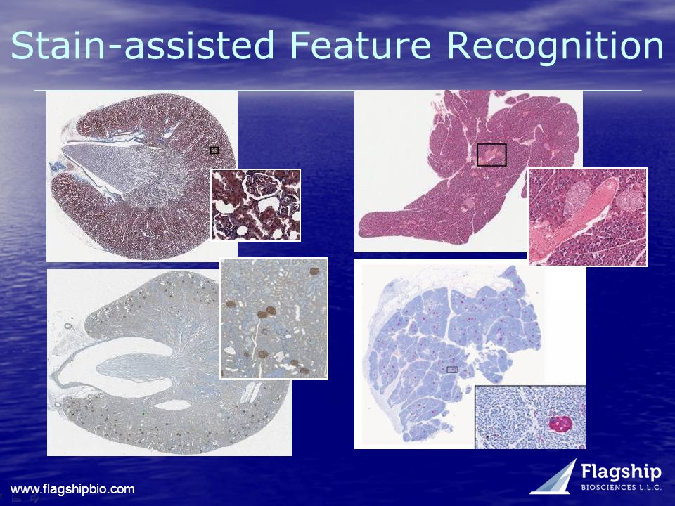 Stain-assisted Feature Recognition