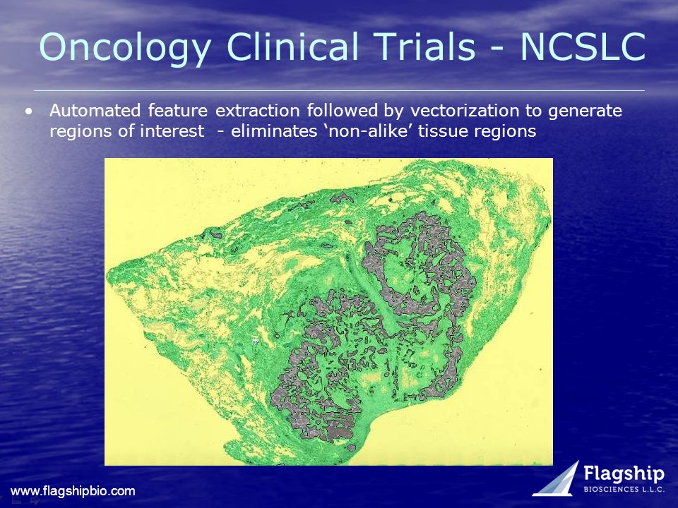 Oncology Clinical Trials - NCSLC