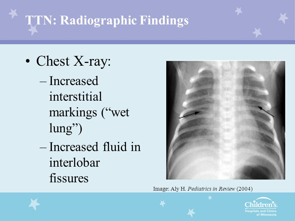 TTN: Radiographic Findings