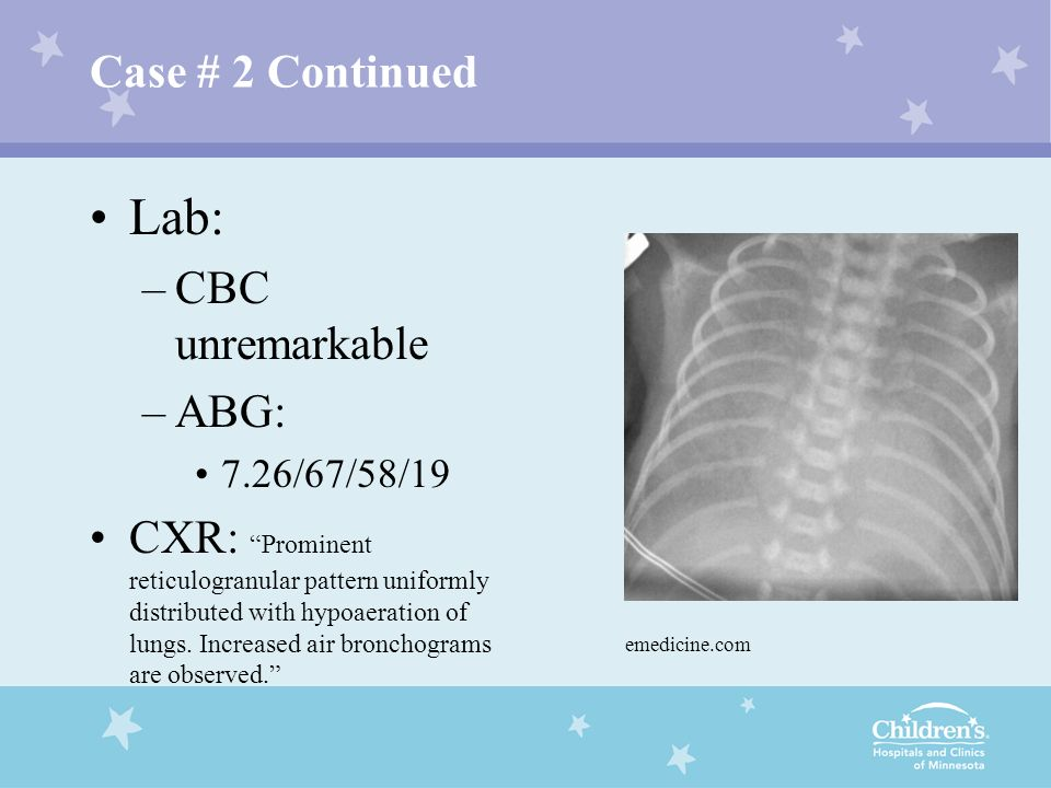 Lab: Case # 2 Continued CBC unremarkable ABG: