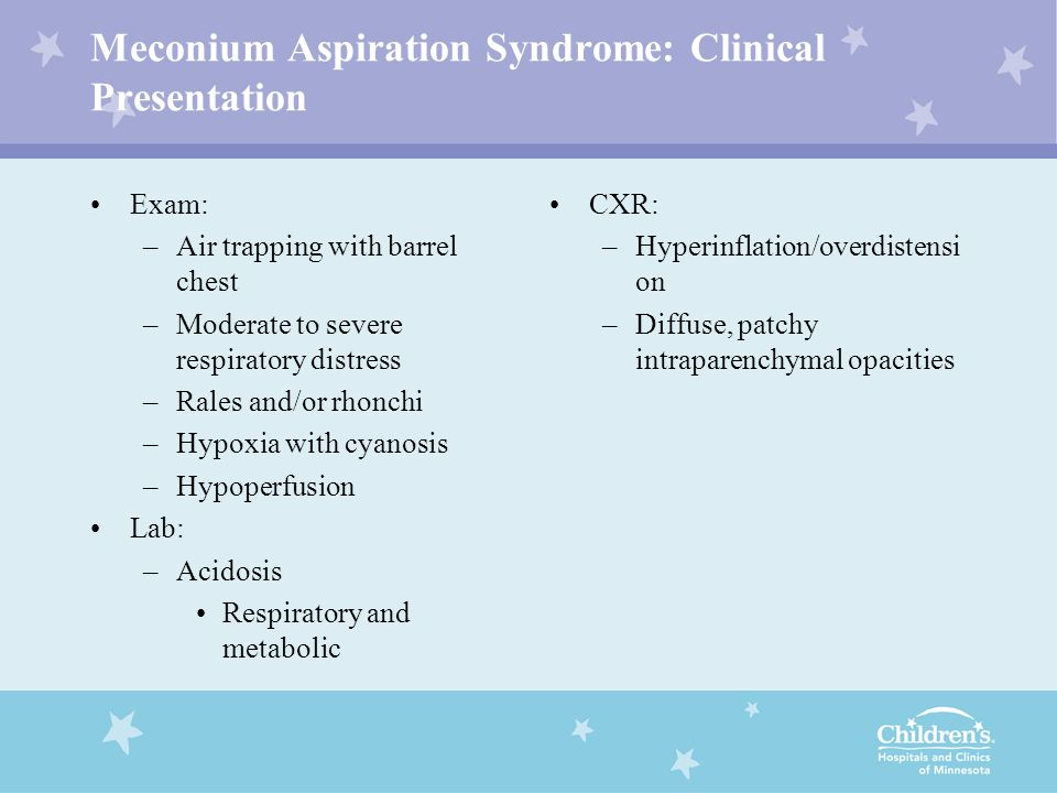 Meconium Aspiration Syndrome: Clinical Presentation