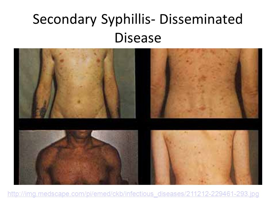 Secondary Syphillis- Disseminated Disease