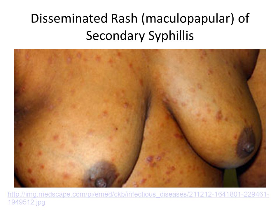 Disseminated Rash (maculopapular) of Secondary Syphillis