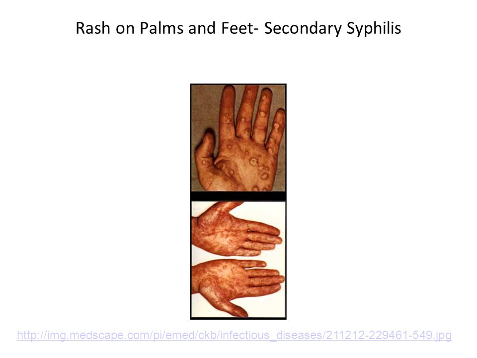 Rash on Palms and Feet- Secondary Syphilis