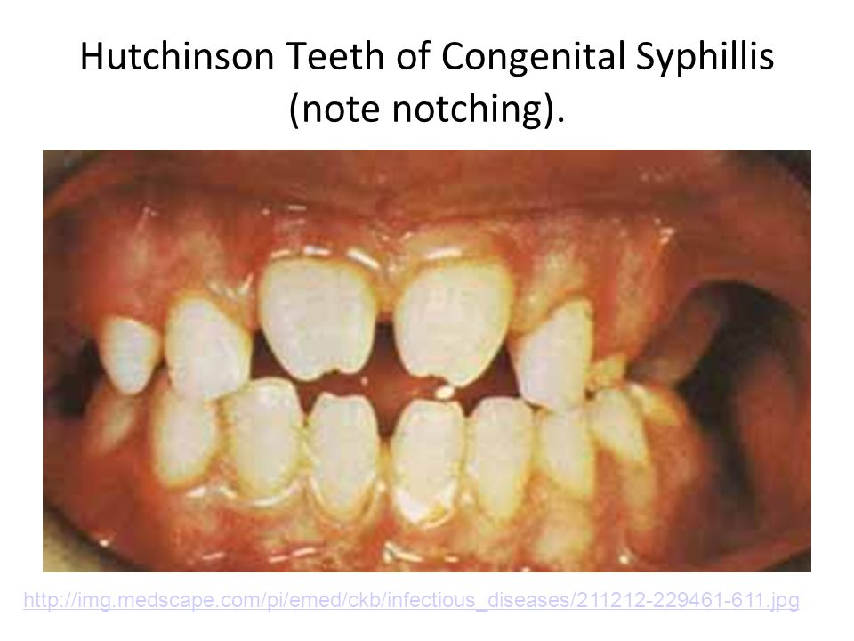 Hutchinson Teeth of Congenital Syphillis (note notching).