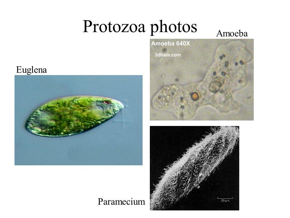 Protozoa photos Amoeba Euglena Paramecium