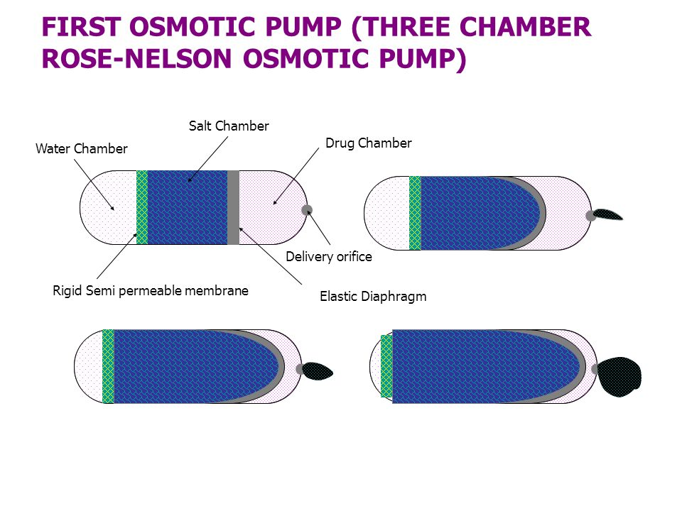FIRST OSMOTIC PUMP (THREE CHAMBER ROSE-NELSON OSMOTIC PUMP)