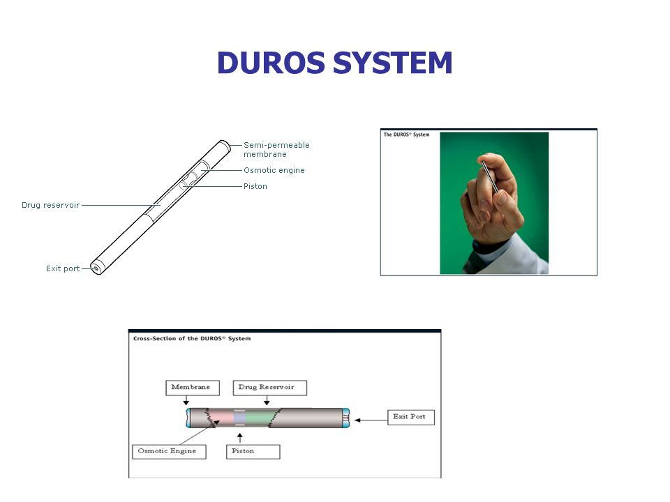 DUROS SYSTEM