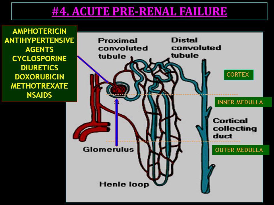 #4. ACUTE PRE-RENAL FAILURE