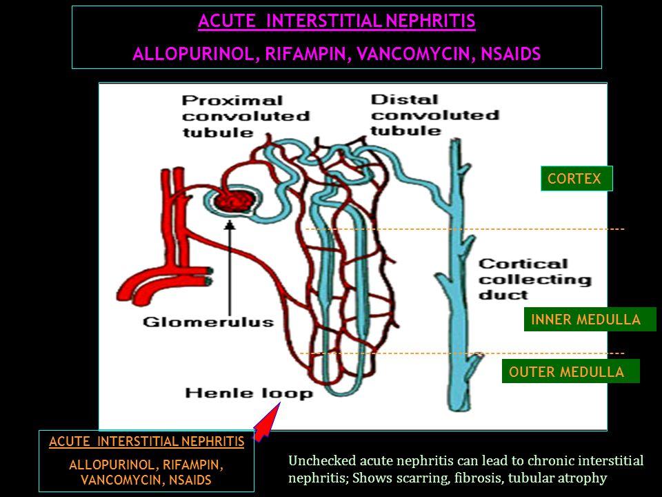 ACUTE INTERSTITIAL NEPHRITIS ALLOPURINOL, RIFAMPIN, VANCOMYCIN, NSAIDS