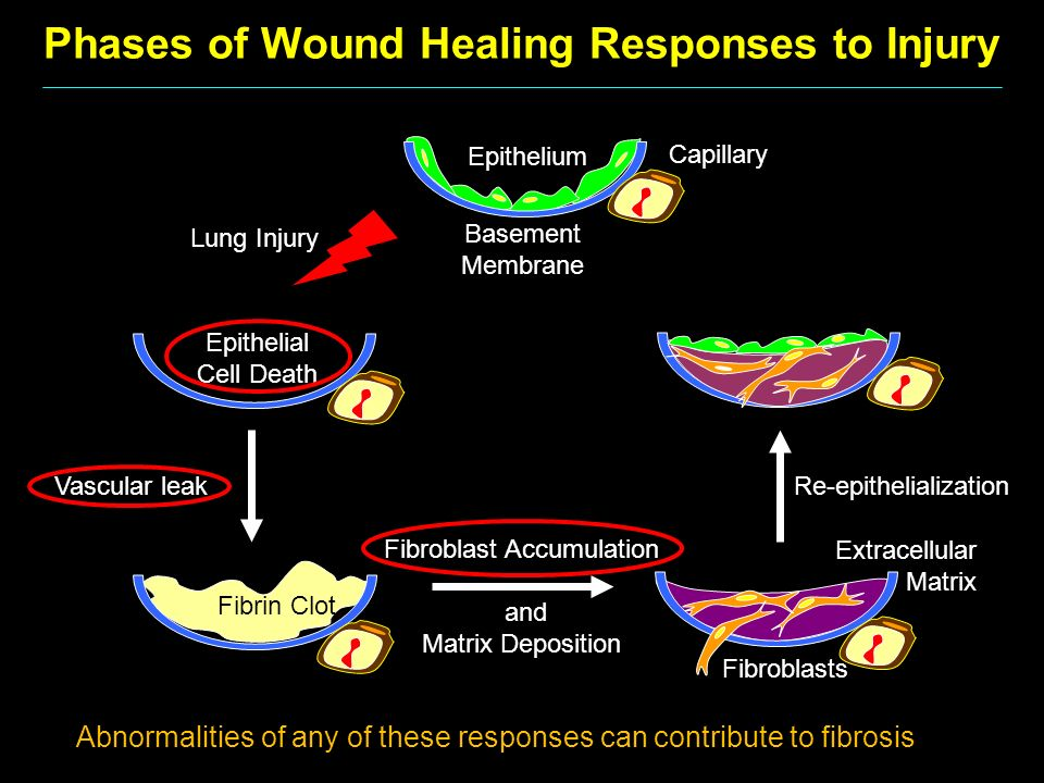 Phases of Wound Healing Responses to Injury