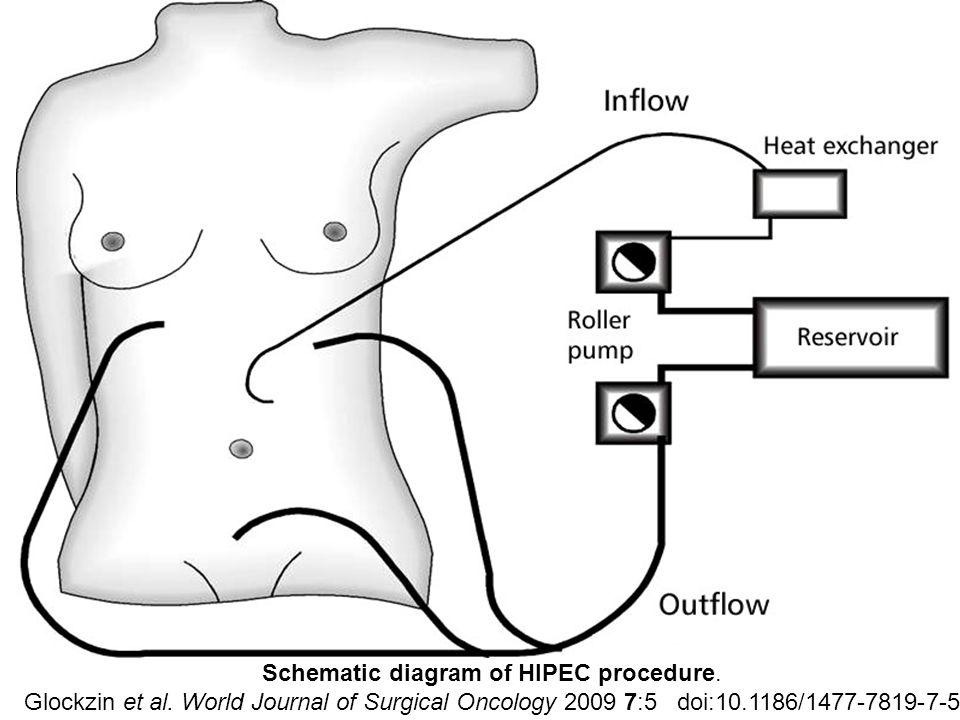 Schematic diagram of HIPEC procedure.