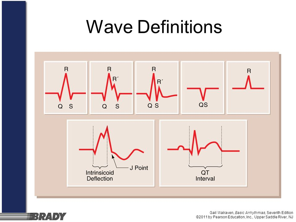 Wave Definitions Gail Walraven, Basic Arrhythmias, Seventh Edition ©2011 by Pearson Education, Inc., Upper Saddle River, NJ.