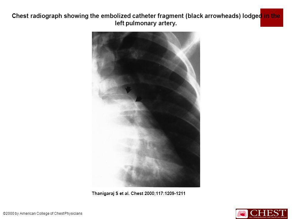 Chest radiograph showing the embolized catheter fragment (black arrowheads) lodged in the left pulmonary artery.