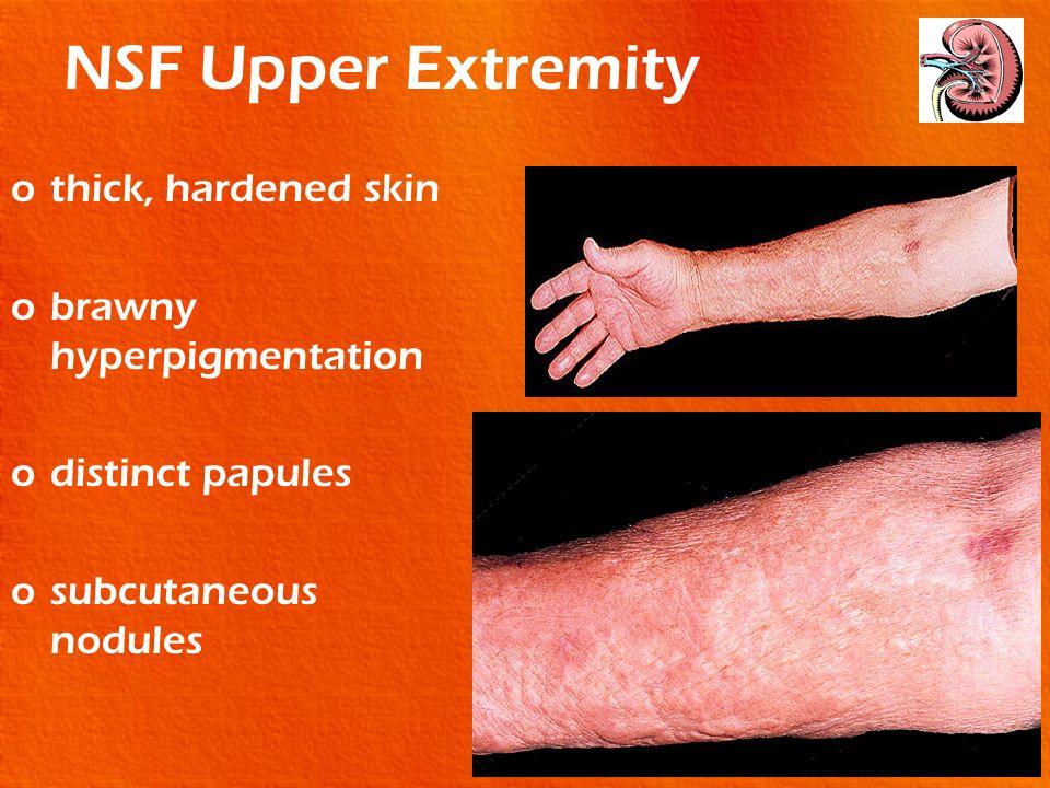 NSF Upper Extremity thick, hardened skin brawny hyperpigmentation