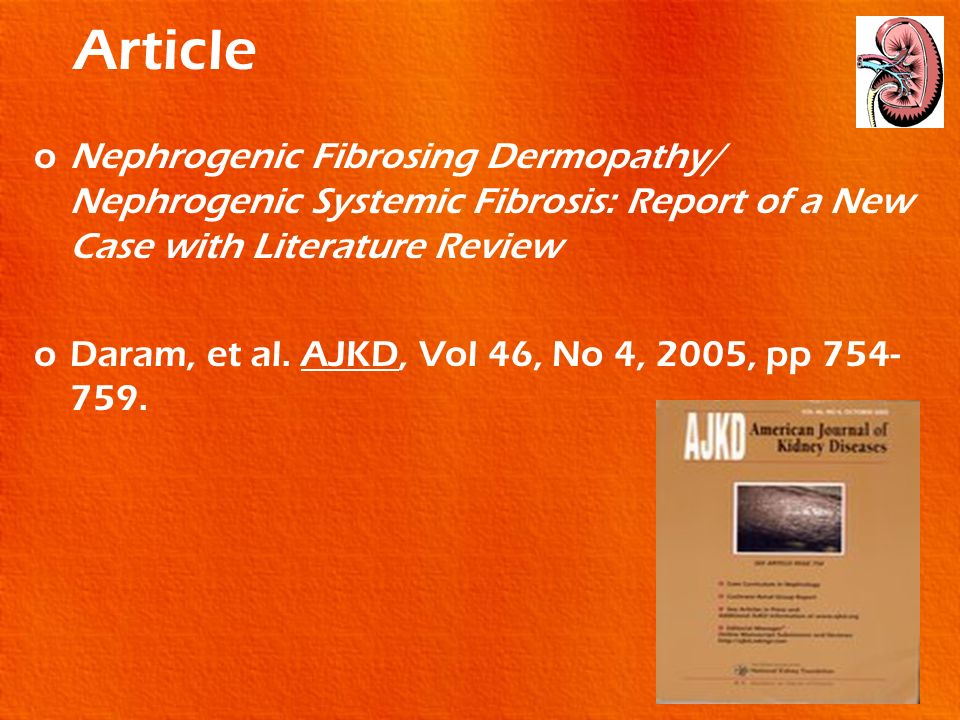 Article Nephrogenic Fibrosing Dermopathy/ Nephrogenic Systemic Fibrosis: Report of a New Case with Literature Review.