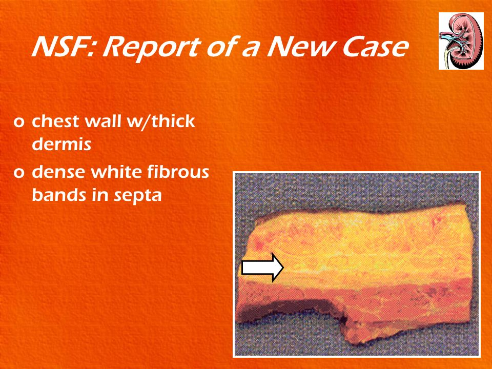 NSF: Report of a New Case