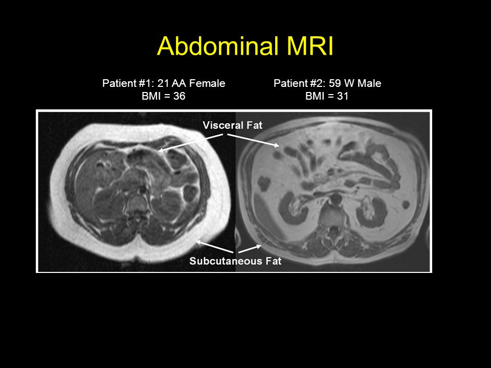 Abdominal MRI Patient #1: 21 AA Female BMI = 36 Patient #2: 59 W Male