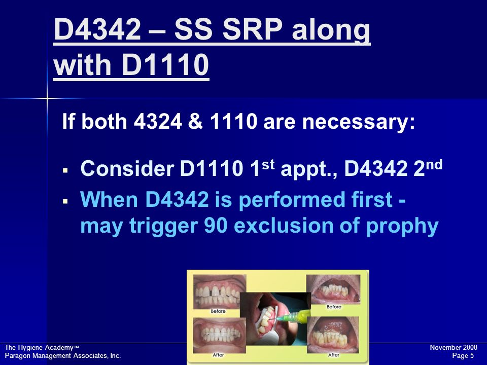 D4342 – SS SRP along with D1110 If both 4324 & 1110 are necessary: