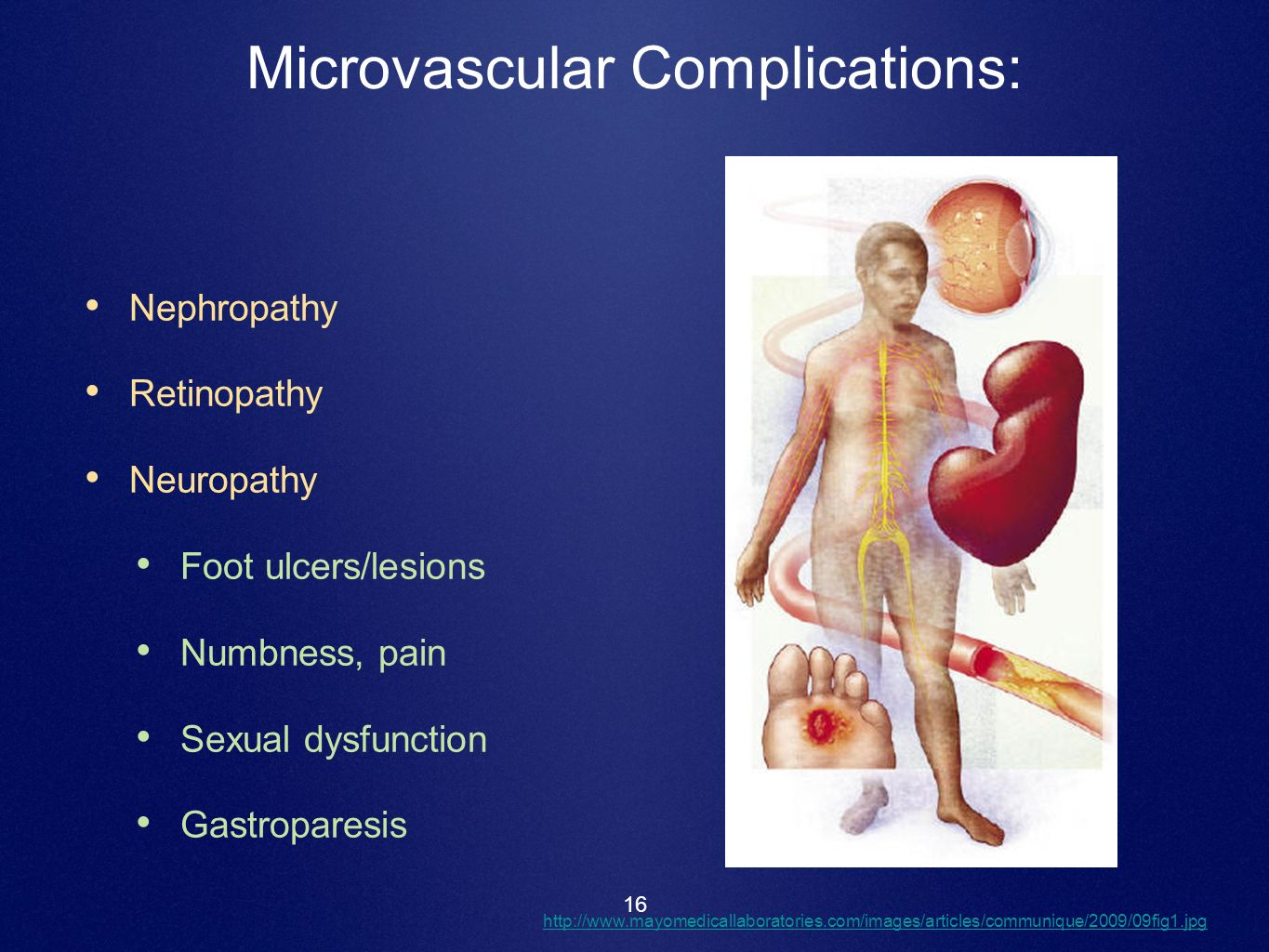 Microvascular Complications:
