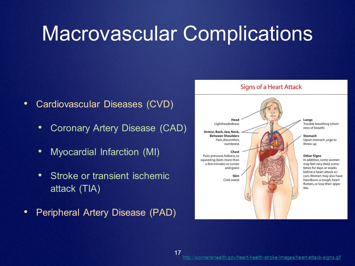 Macrovascular Complications