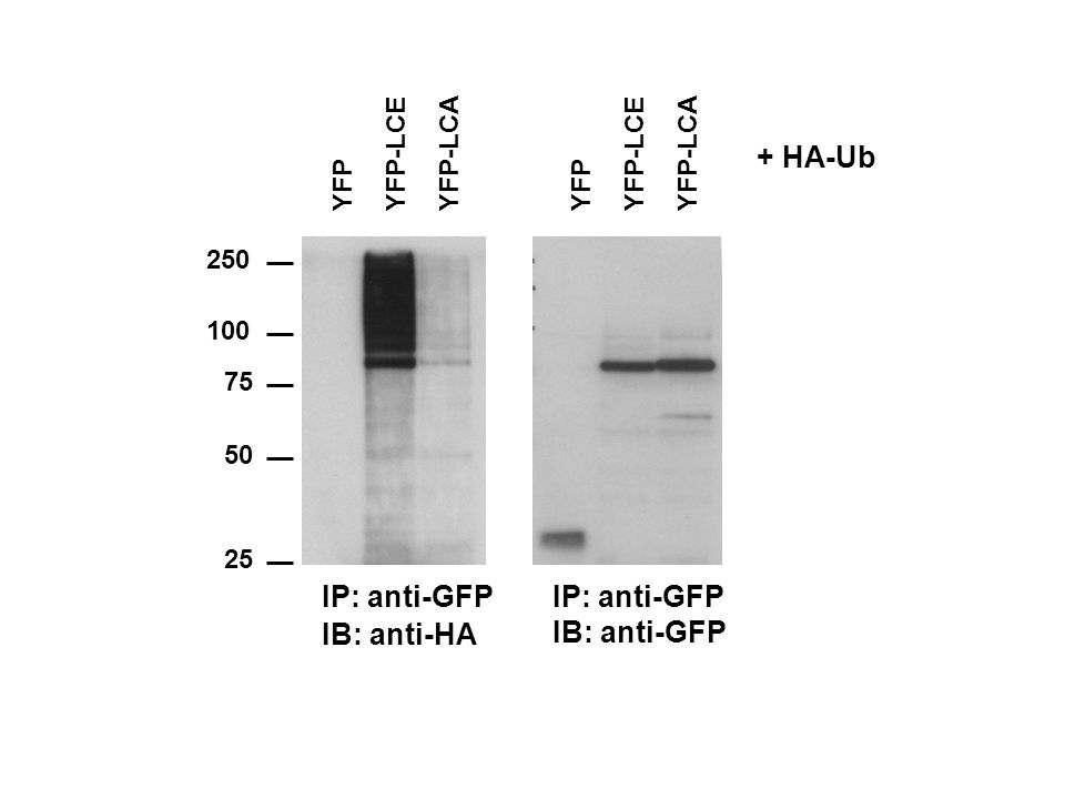 + HA-Ub IP: anti-GFP IP: anti-GFP IB: anti-HA IB: anti-GFP YFP YFP-LCE