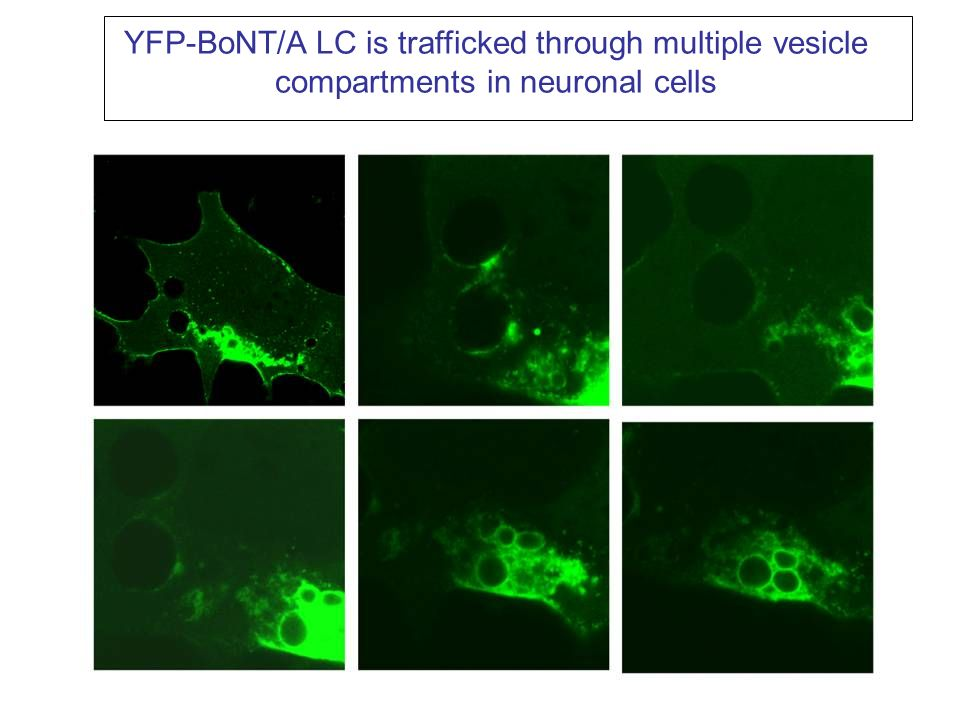 YFP-BoNT/A LC is trafficked through multiple vesicle compartments in neuronal cells