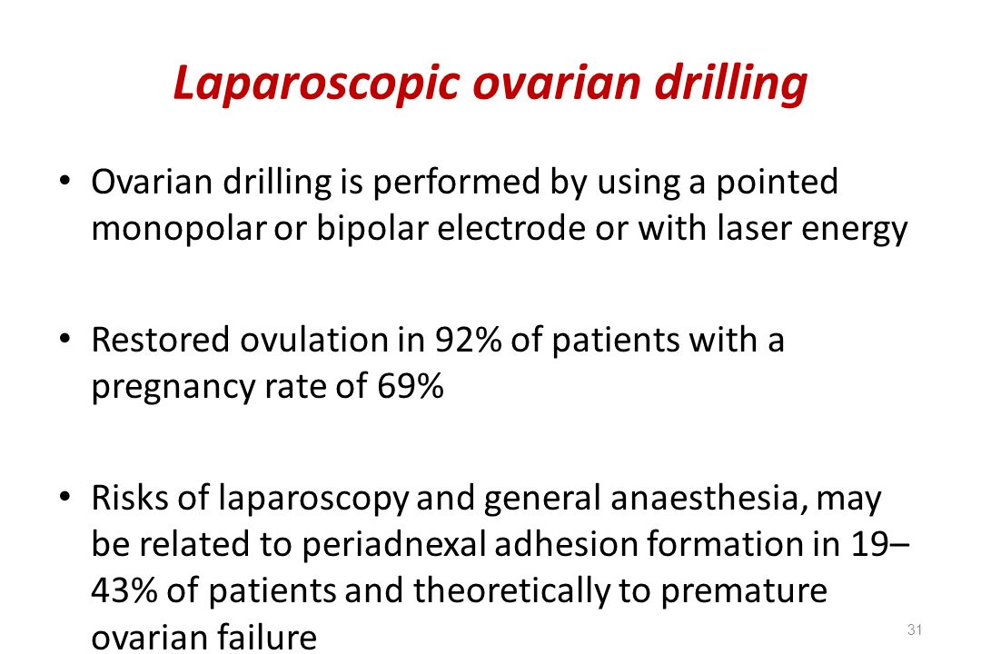 Laparoscopic ovarian drilling