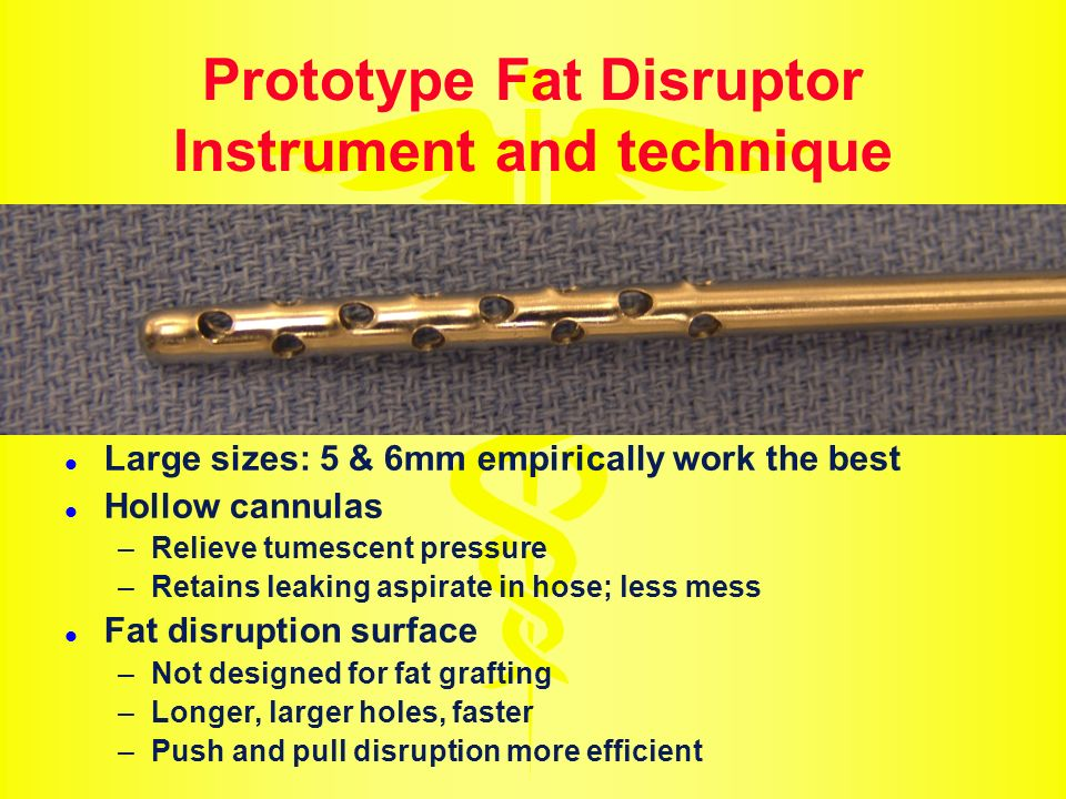 Prototype Fat Disruptor Instrument and technique
