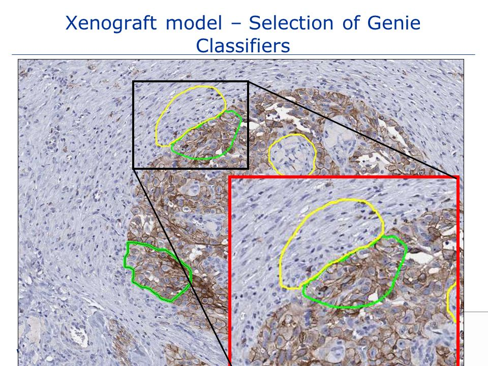 Xenograft model – Selection of Genie Classifiers