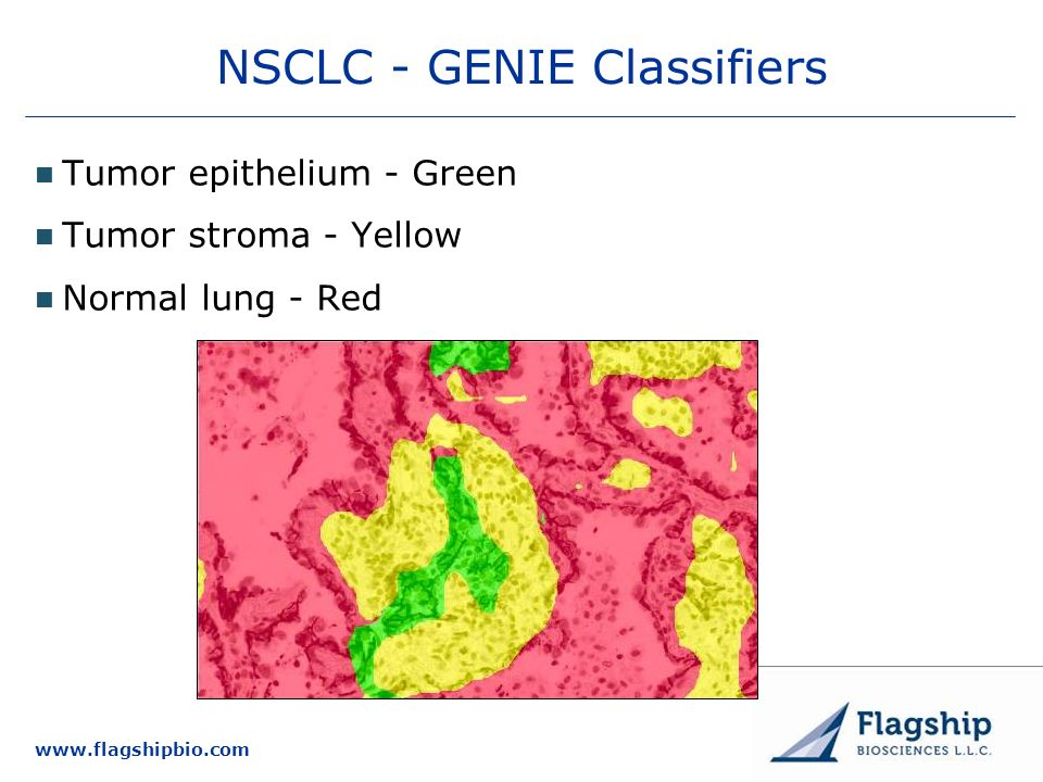 NSCLC - GENIE Classifiers