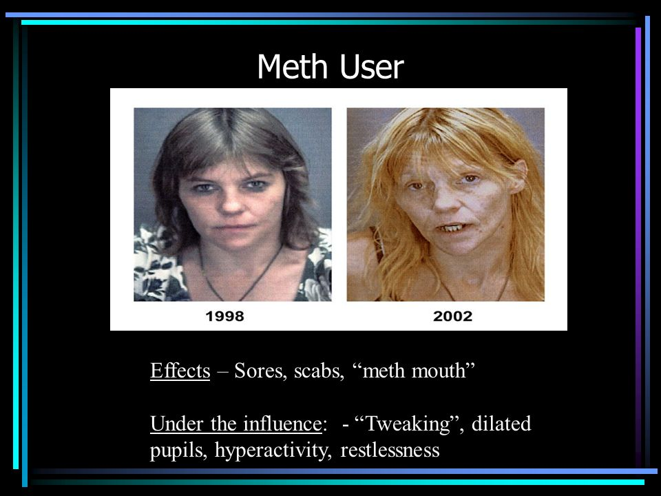 Meth User Effects – Sores, scabs, meth mouth
