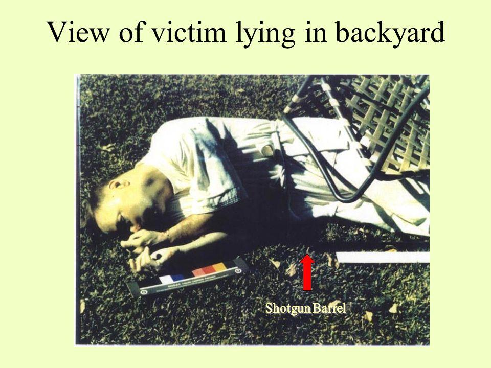 View of victim lying in backyard