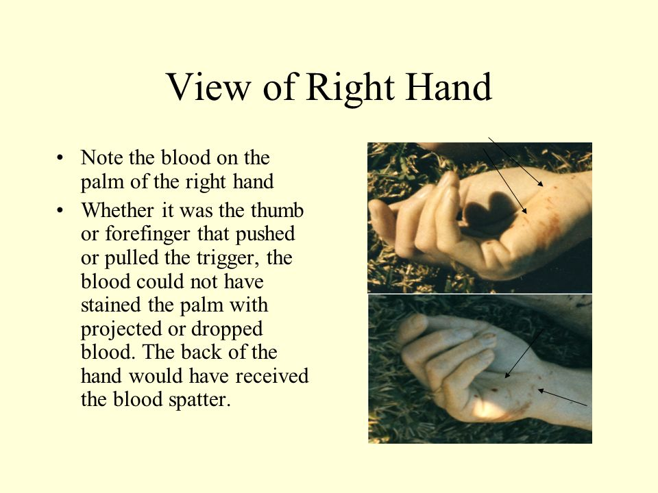View of Right Hand Note the blood on the palm of the right hand