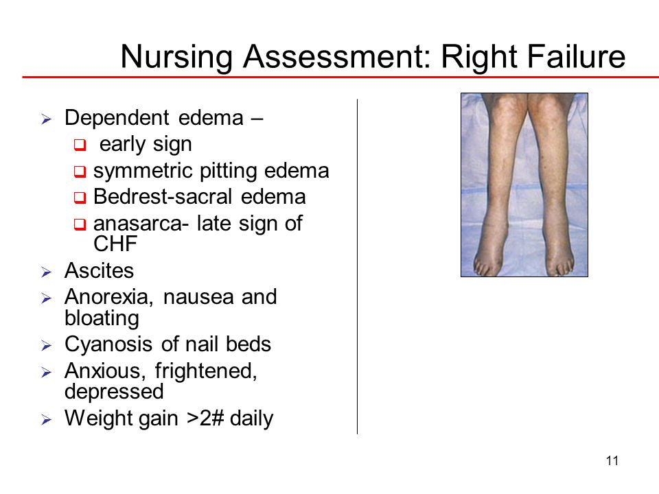 Nursing Assessment: Right Failure