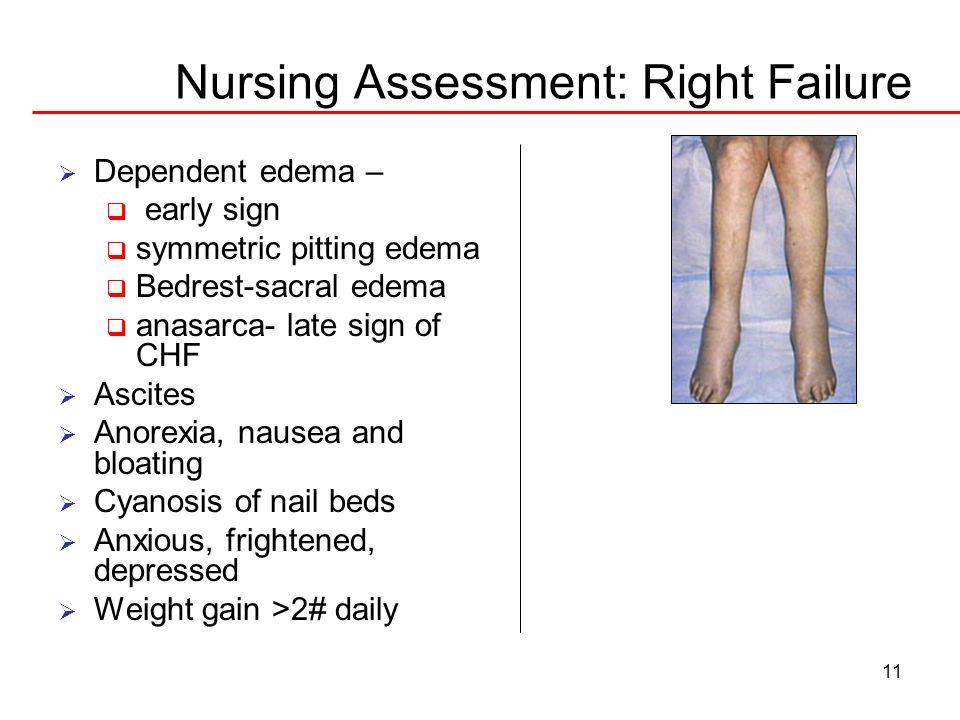 Nursing Assessment: Right Failure