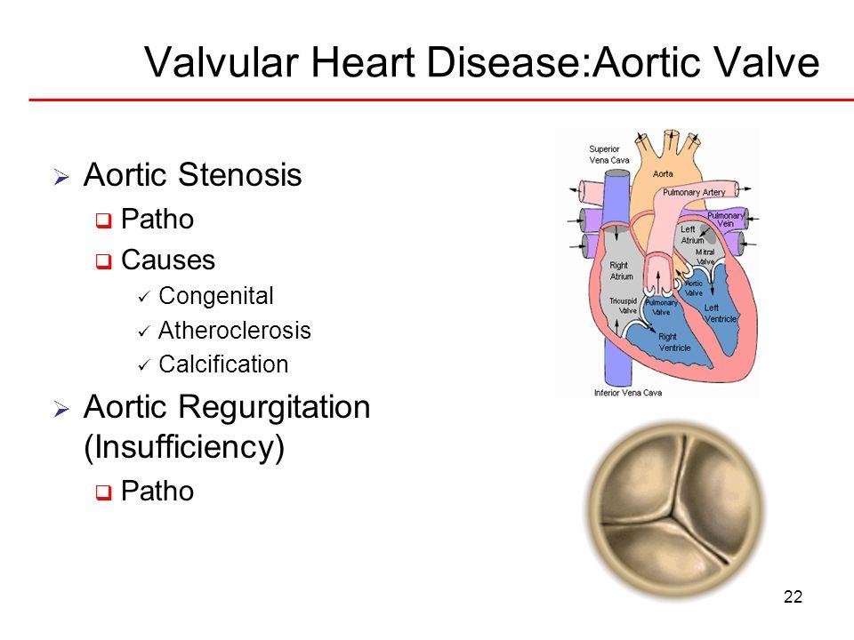 Valvular Heart Disease:Aortic Valve