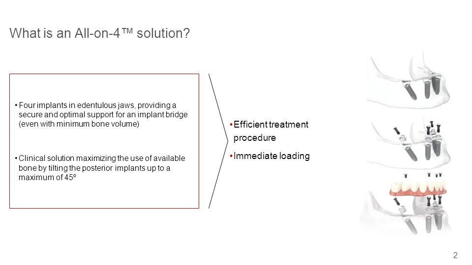 What is an All-on-4™ solution