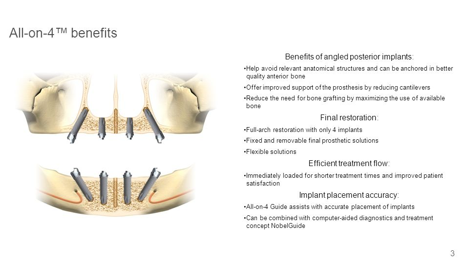 All-on-4™ benefits Benefits of angled posterior implants:
