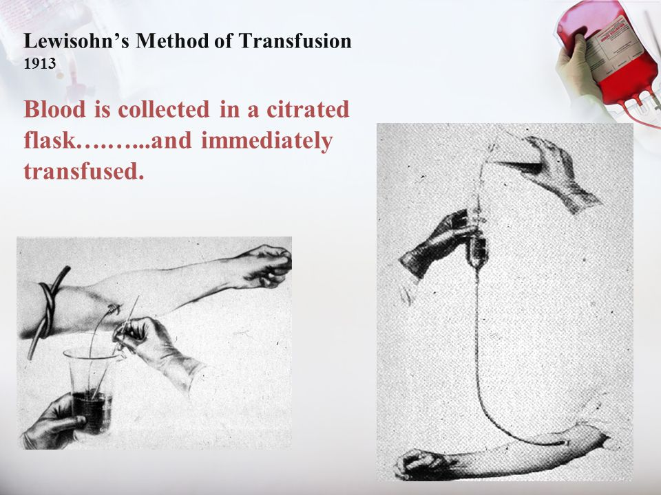 Lewisohn's Method of Transfusion 1913 Blood is collected in a citrated flask….…...and immediately transfused.