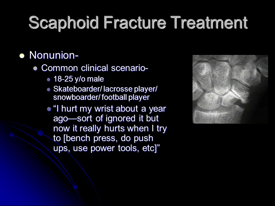 Scaphoid Fracture Treatment