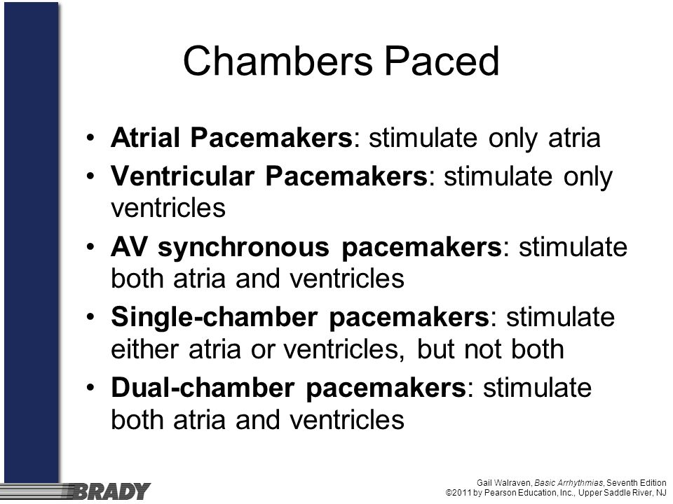 Chambers Paced Atrial Pacemakers: stimulate only atria