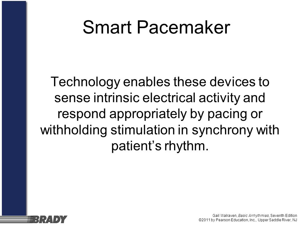 Smart Pacemaker