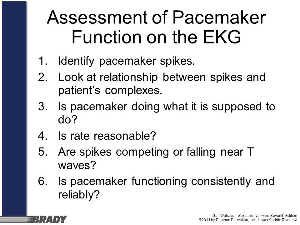 Assessment of Pacemaker Function on the EKG