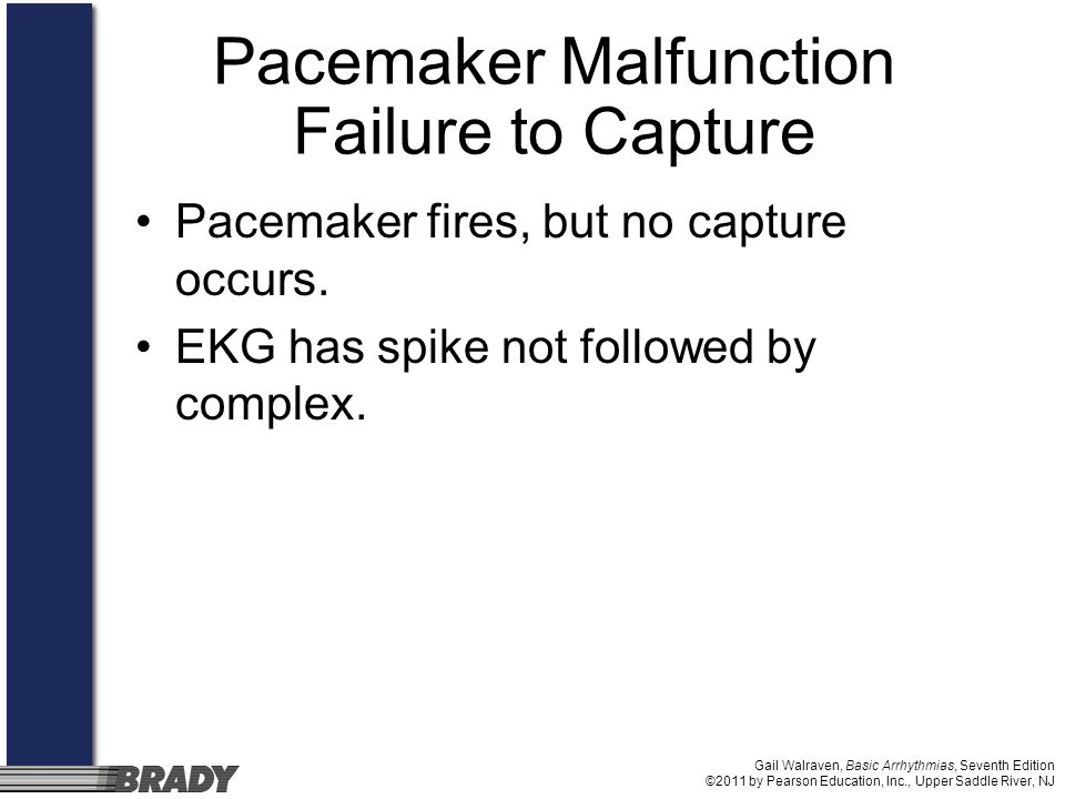 Pacemaker Malfunction Failure to Capture
