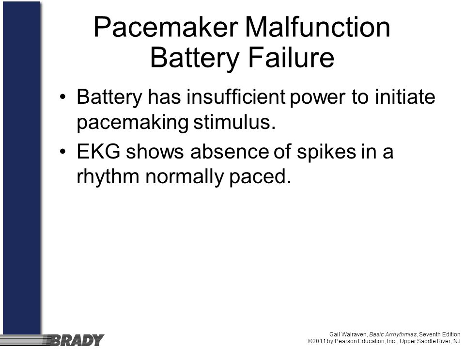 Pacemaker Malfunction Battery Failure