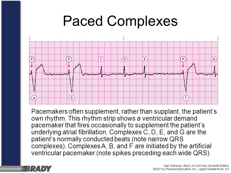 Paced Complexes