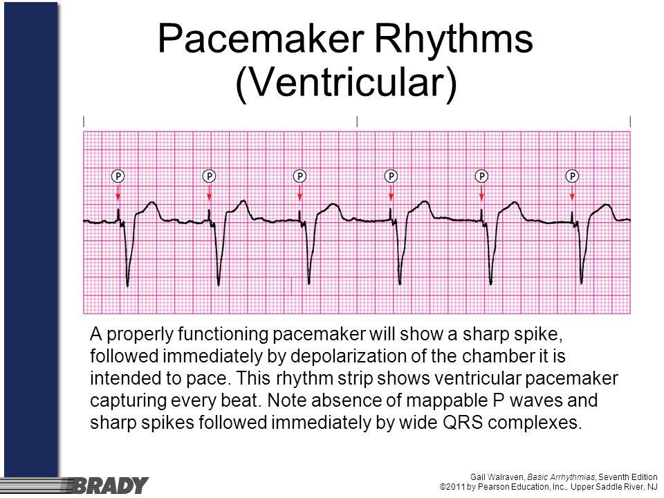 Pacemaker Rhythms (Ventricular)