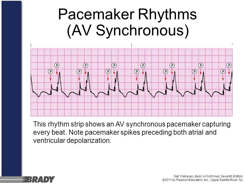 Pacemaker Rhythms (AV Synchronous)